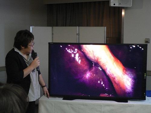 8K内視鏡を用いた手術の記録映像を説明する杏林大学医学部付属病院の青木氏... 8K内視鏡を用い